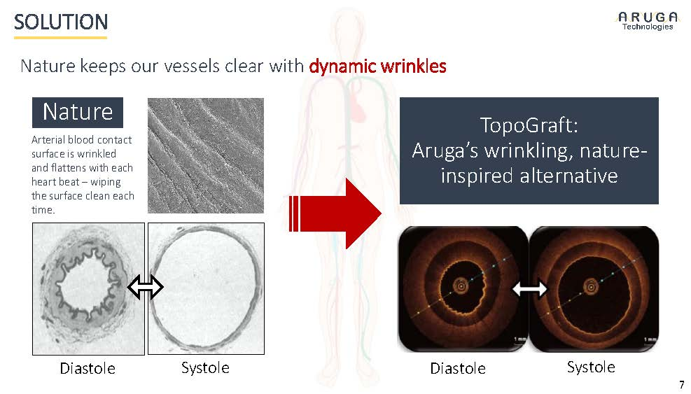Aruga Technologies, University of Pittsburgh startup, is redefining the vascular graft market.